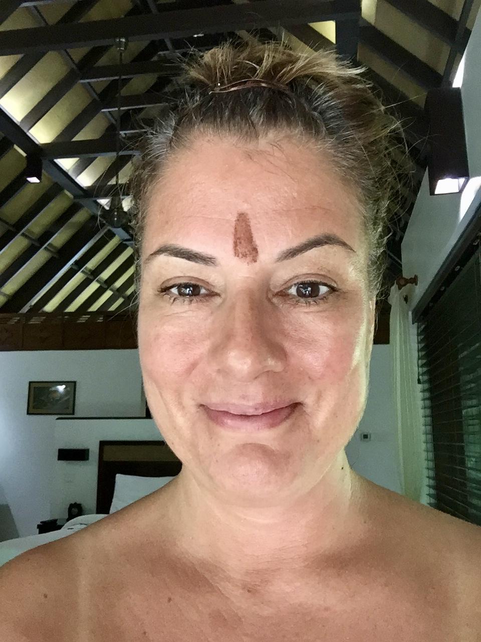 Carnoustie - Selfie - After Treatments