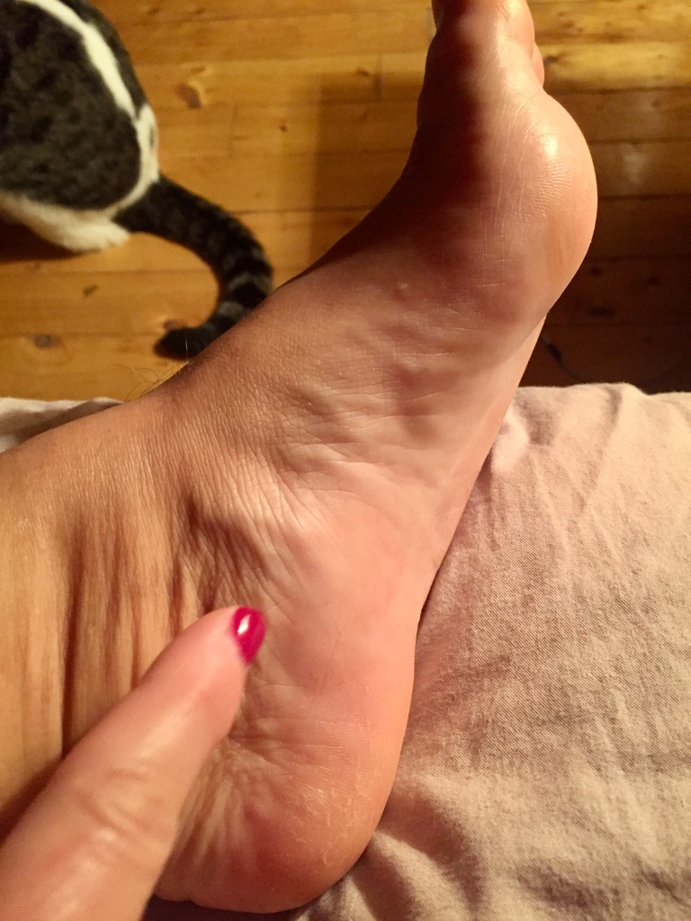 Saturday morning foot - swelling has gone down a bit!