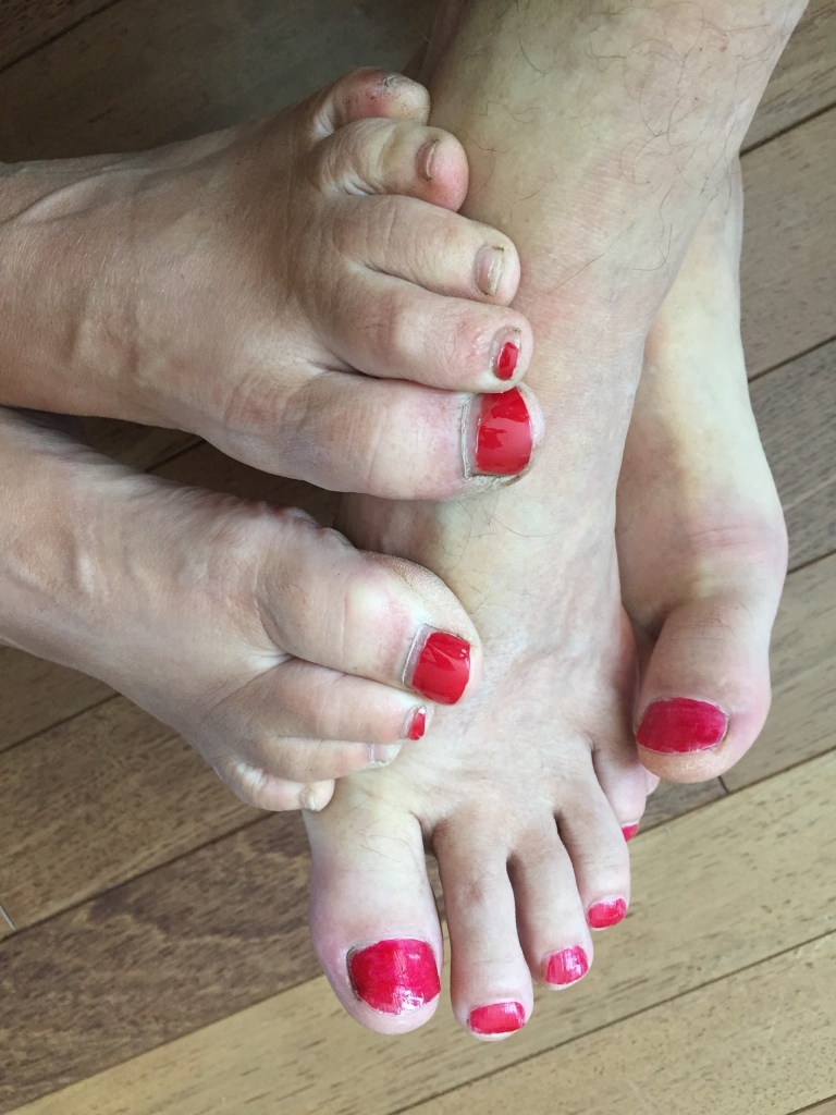 April, 2020 - Campbell River, Vancouver Island, British Columbia - Stephanie & Michael - Sorta matching toes!!!